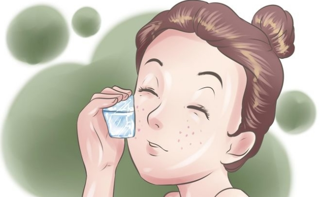 Go Does Ice Away Pimples Help