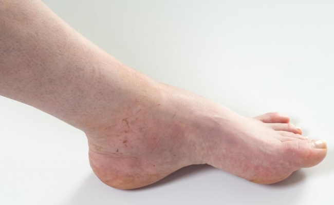 Relief from Edema