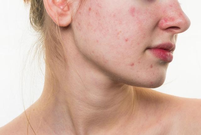 Controls Skin Problems