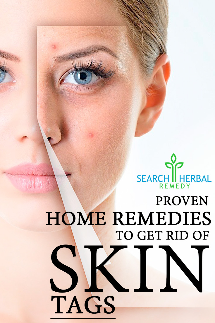 10 Proven Home Remedies To Get Rid Of Skin Tags