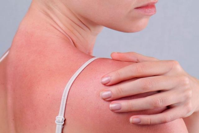 Heals Skin Ulcers, Burns And Sunburn