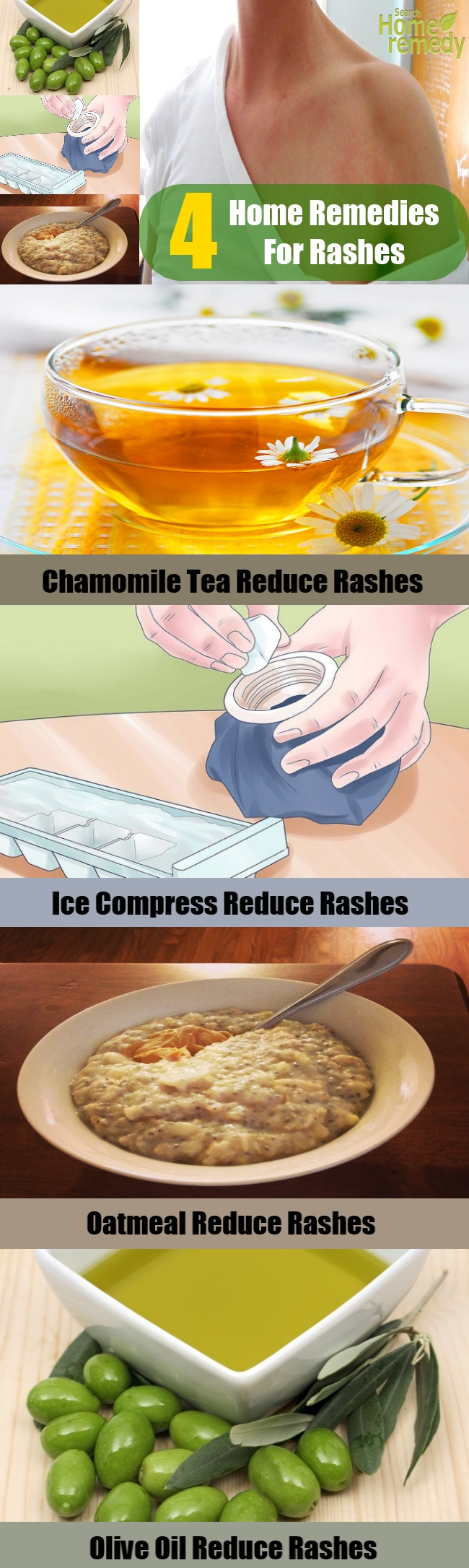 4 Home Remedies For Rashes