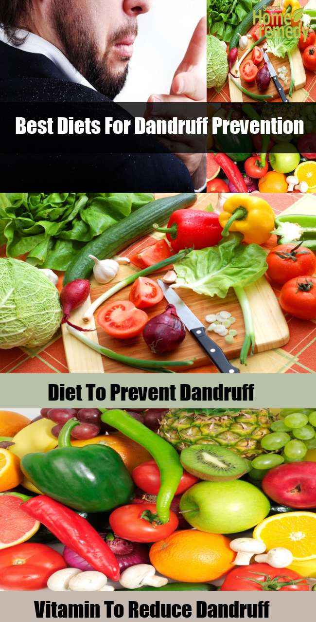 Diets For Dandruff Prevention