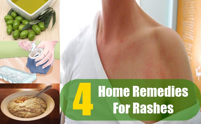 Home Remedies For Rashes