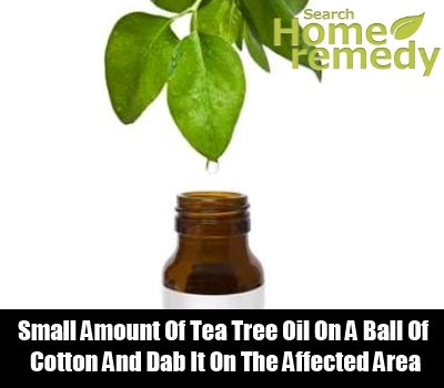 Tea Tree Oil1