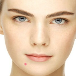 Drugs and Medications to Treat acne
