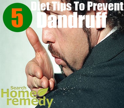 5 Diet Tips To Prevent Dandruff