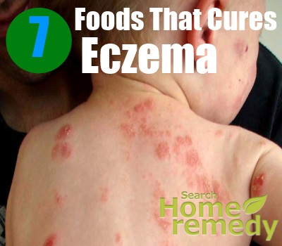 7 Foods That Cures Eczema
