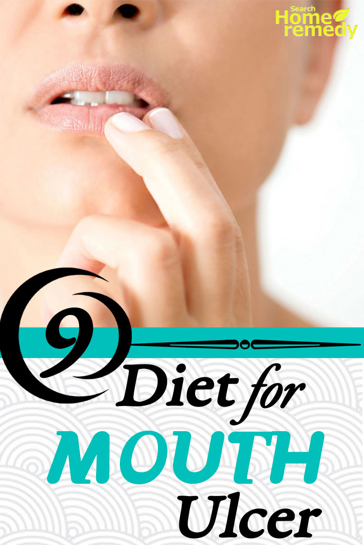 Diet For Mouth Ulcer