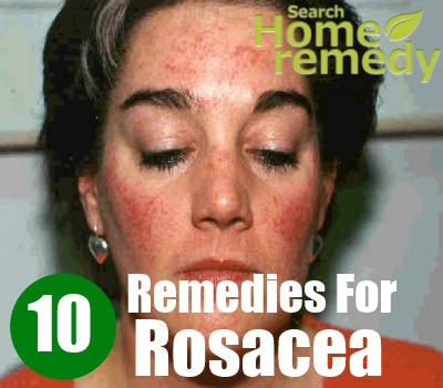 10 Home Remedies For Rosacea