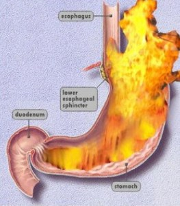 Drugs And Medications To Treat Acid Reflux