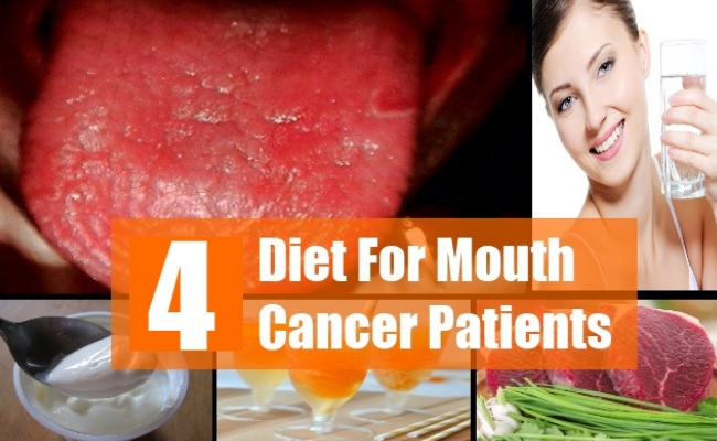 Diet For Mouth Cancer Patients