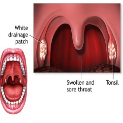 Drugs & Medications to Treat Sore Throat