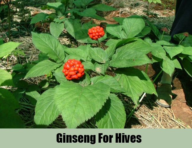 Ginseng For Hives