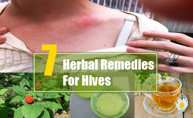 Herbal Remedies For Hives