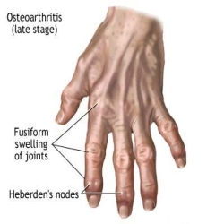 Herbal Remedies For Osteoarthritis