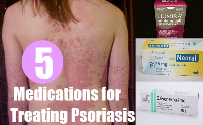 5 Best Drugs and Medications for Treating Psoriasis