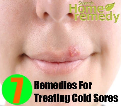 Herbal Remedies For Treating Cold Sores