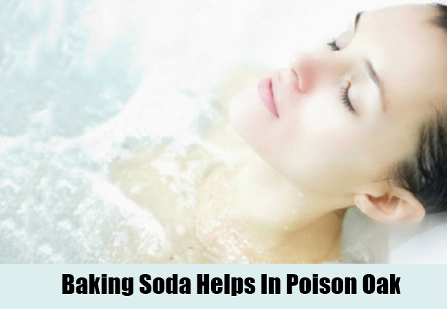 Baking Soda Helps In Poison Oak