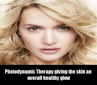 Benefits For Photodynamic Therapy