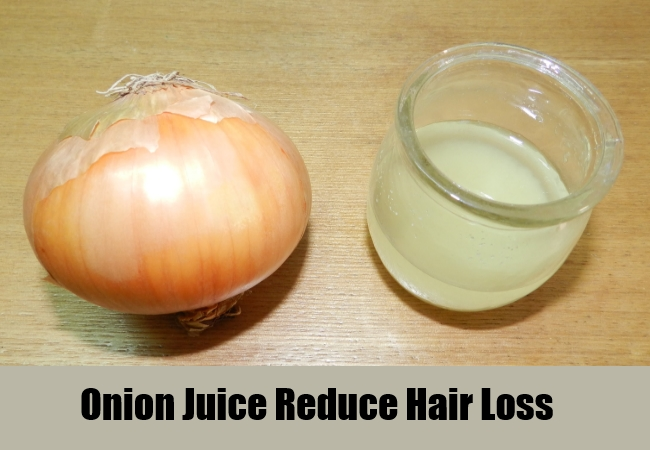 Onion Juice Reduce Hair Loss