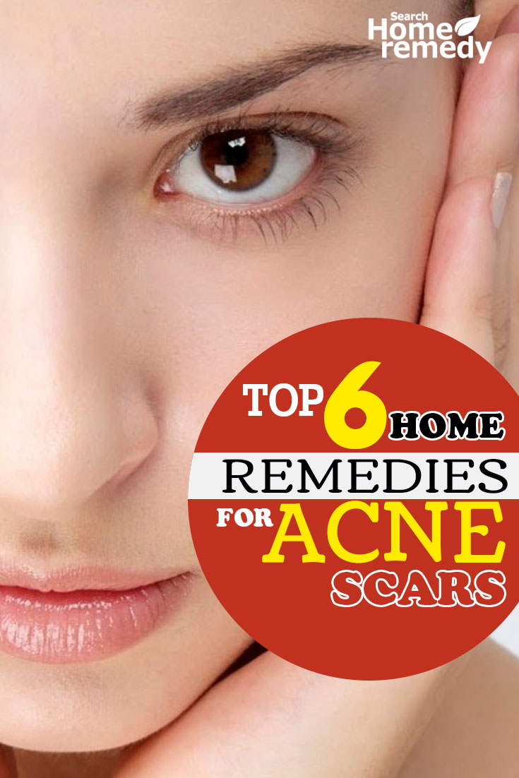 Top 6 Home Remedies For Acne Scars