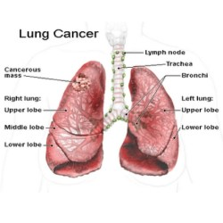 lung cancers