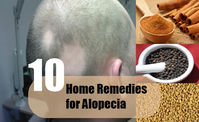 Home Remedies for Alopecia