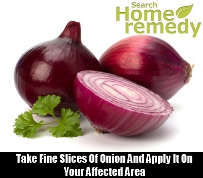 Onion Cures
