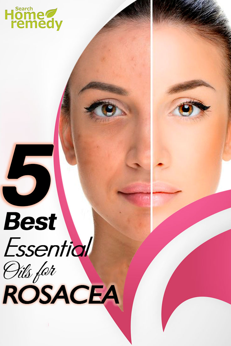 The Best Essential Oils For Rosacea