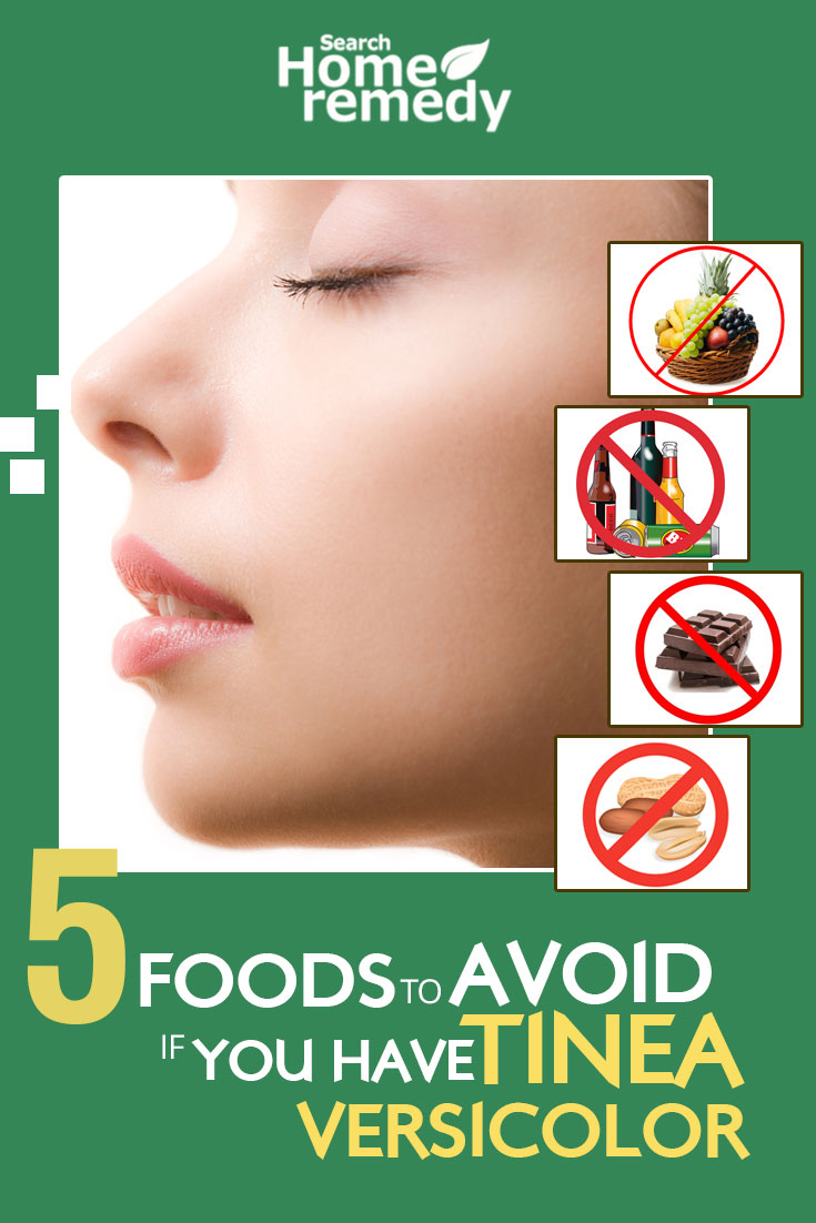Foods To Avoid If You Have Tinea Versicolor