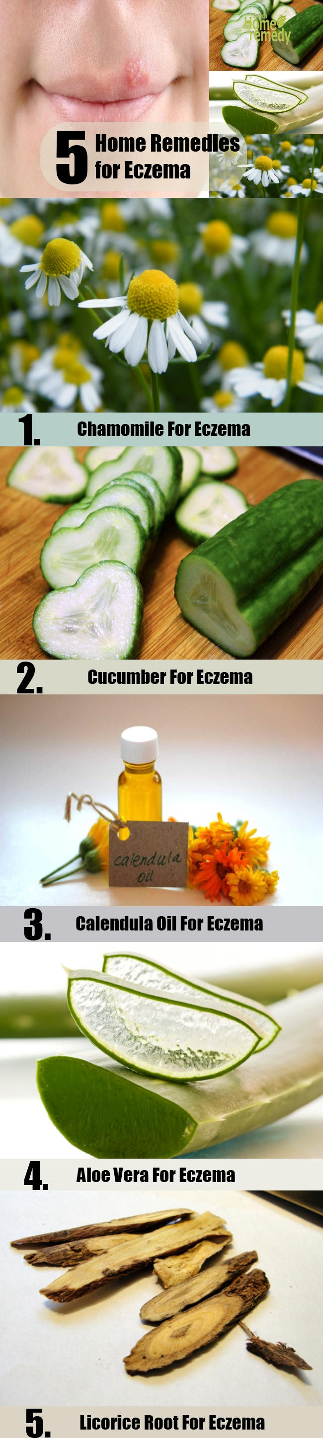 5 Home Remedies for Eczema