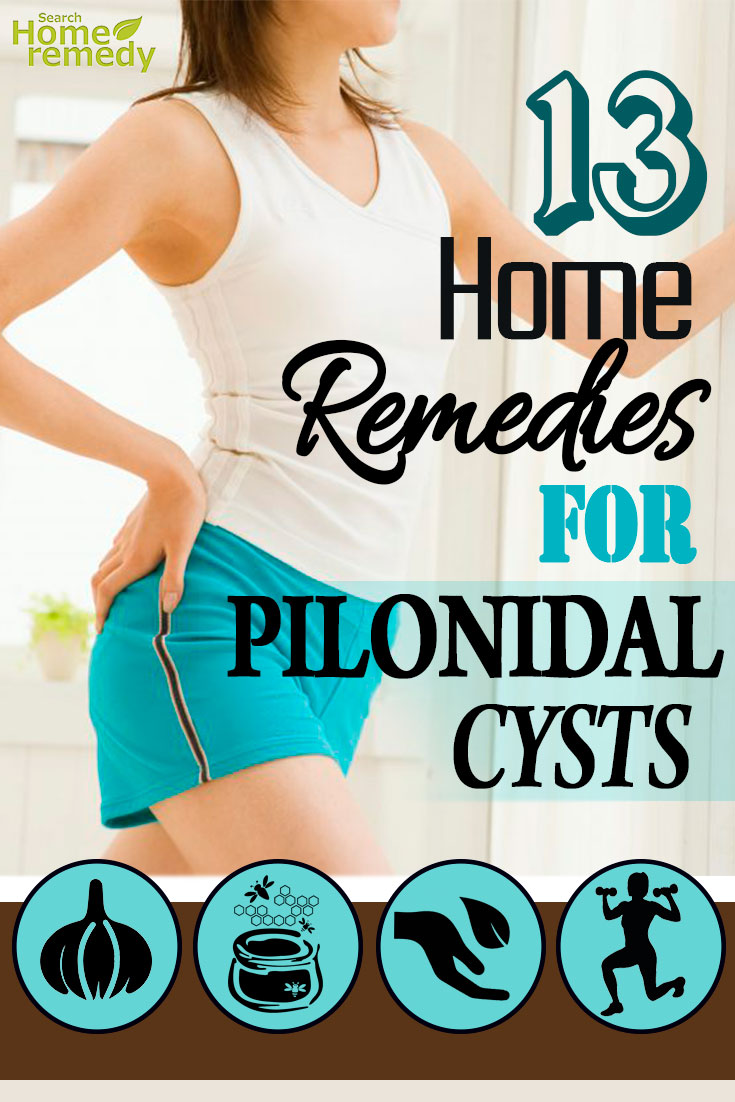 13 Effective Home Remedies For Pilonidal Cysts - Natural Treatments
