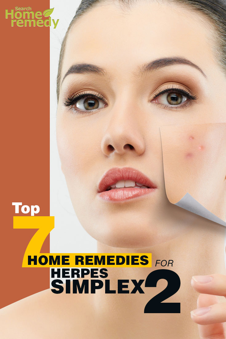 Home Remedies For Herpes Simplex 2