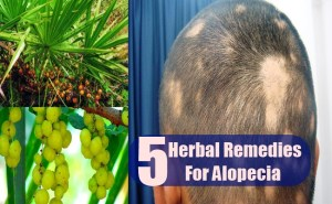 5 Effective Herbal Remedies For Alopecia