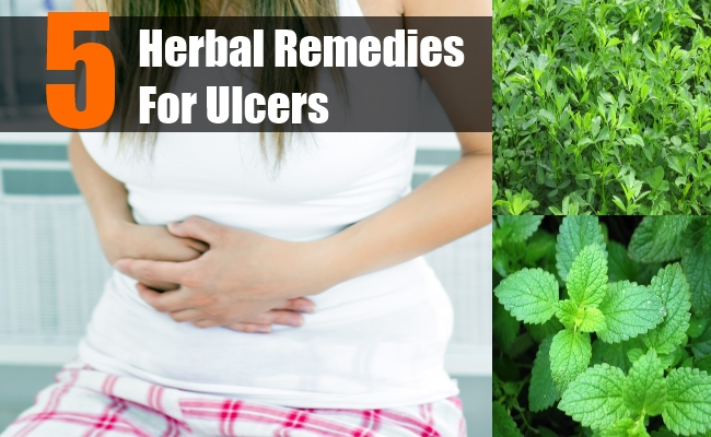 Herbal Remedies For Ulcers