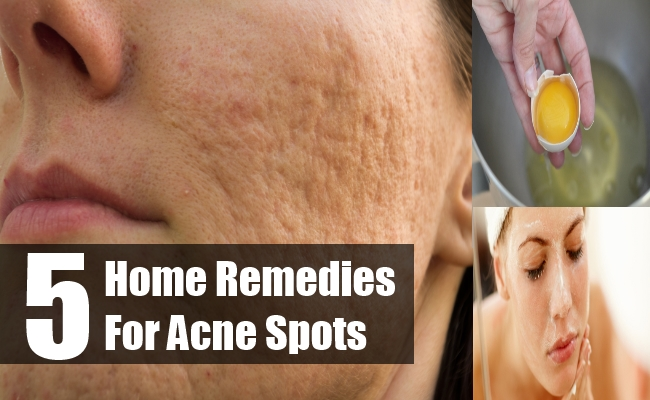 Home Remedies For Acne Spots