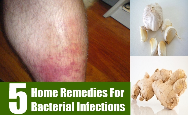 Home Remedies For Bacterial Infections