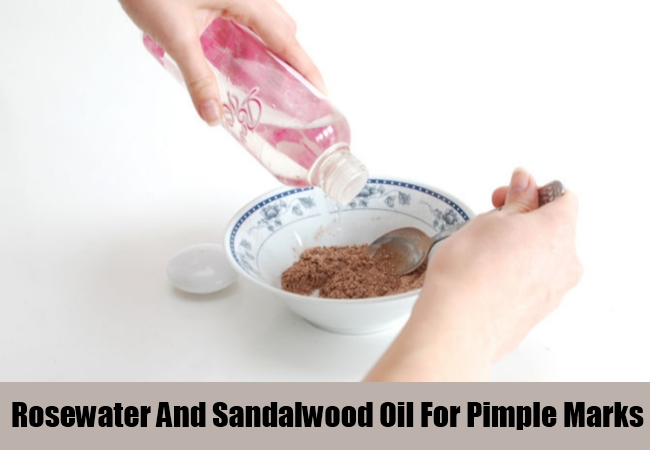 Rosewater And Sandalwood Oil For Pimple Marks