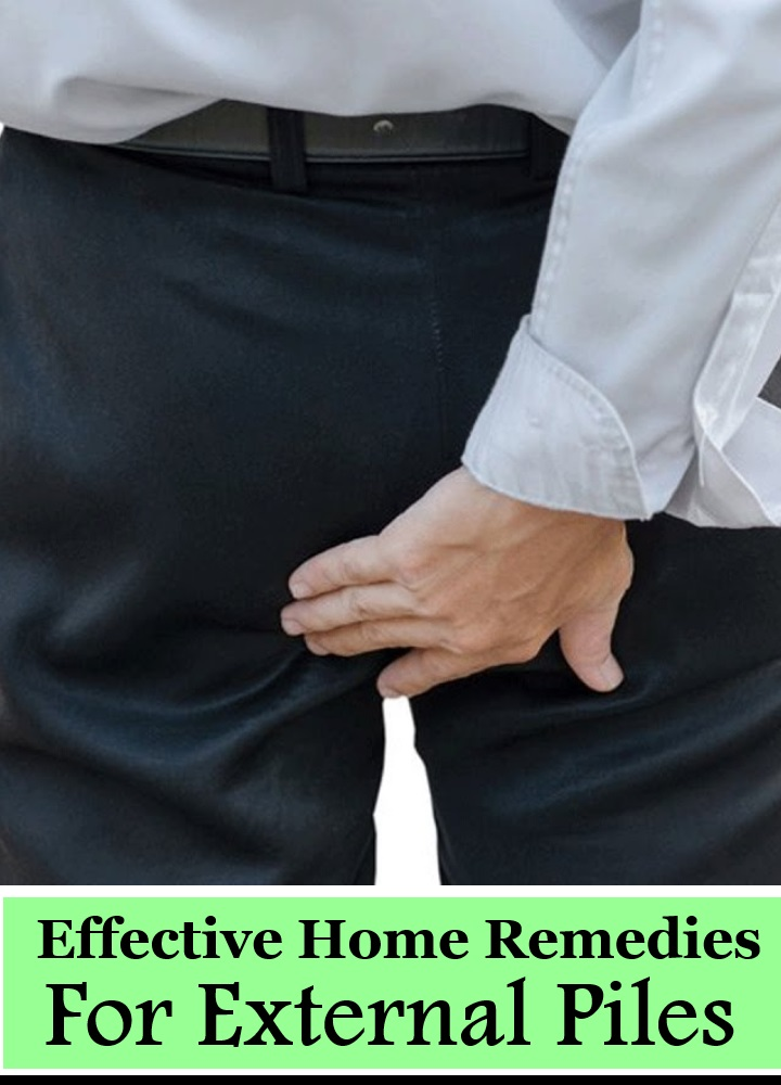11 Effective Home Remedies For External Piles
