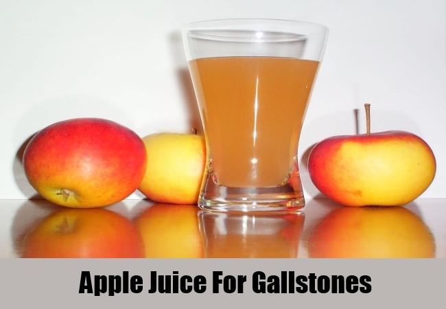 Apple Juice For Gallstones