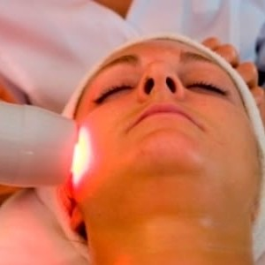 Laser Treatments for Inflammatory Acne