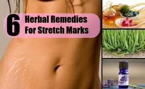 6 Herbal Remedies For Stretch Marks