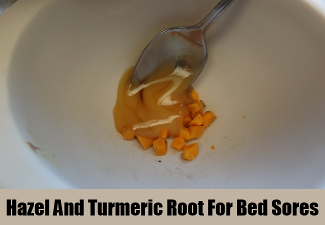 Hazel And Turmeric Root For Bed Sores