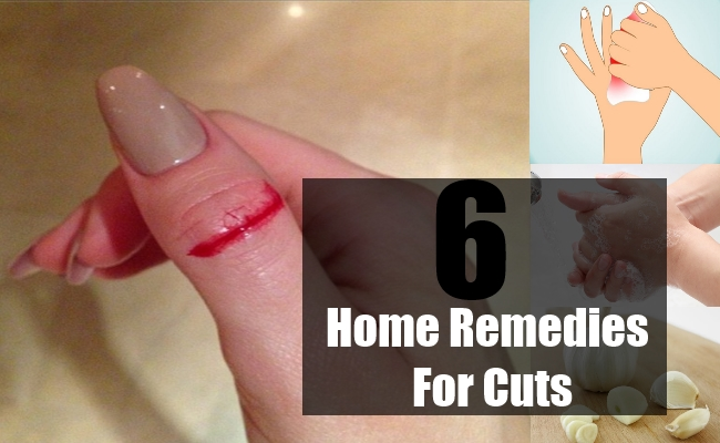 Home Remedies For Cuts