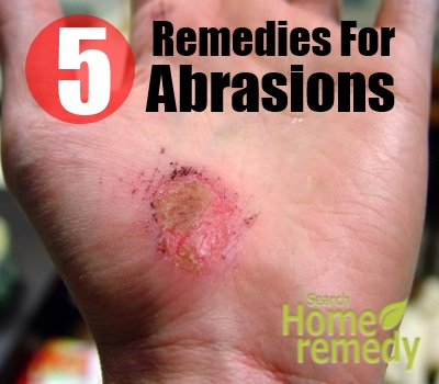 Top 5 Home Remedies For Abrasions Natural Treatments And