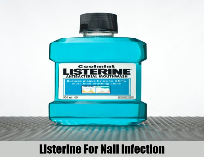 Listerine For Nail Infection