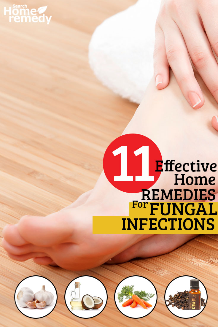 11-effective-home-remedies-for-fungal-infections