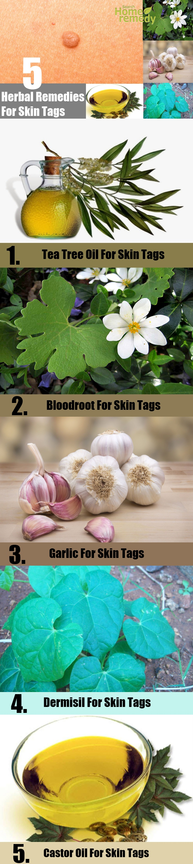 5 Best Herbal Remedies For Skin Tags