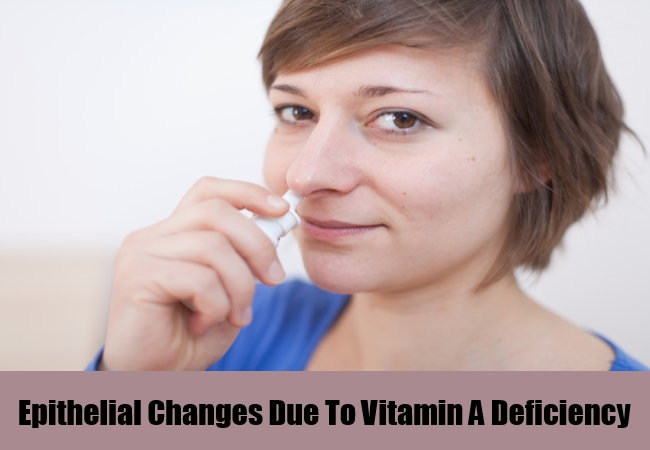 Epithelial Changes Due To Vitamin A Deficiency